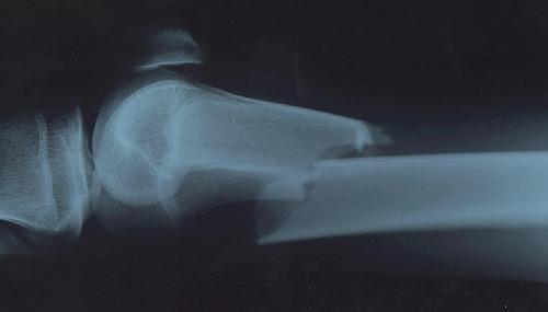 x-ray broken leg